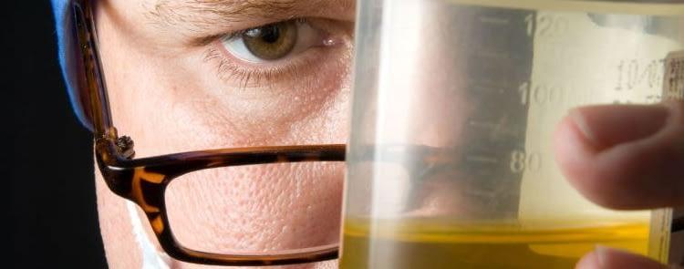 Ways of Passing a Urine Drug Test